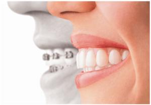 happysmile fogszabályozó kezelés